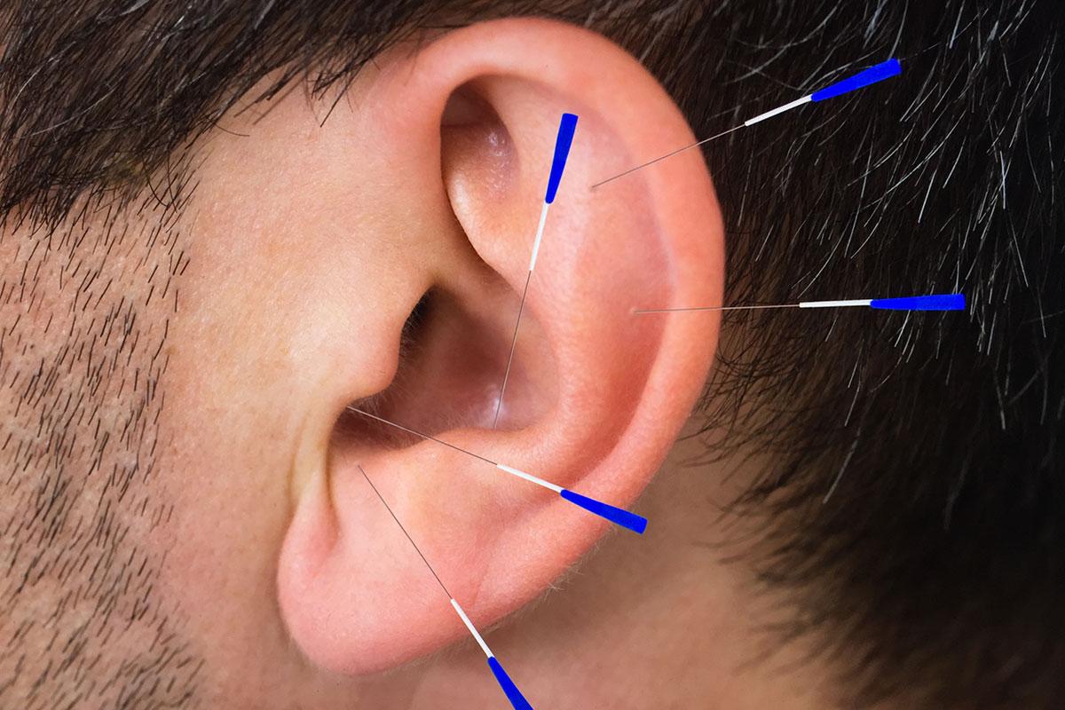 Akupunktur-Behandlung bei Heuschnupfen