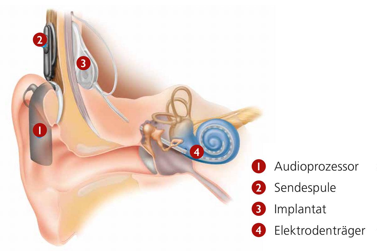 Cochlea-Implantat (schematische Darstellung)