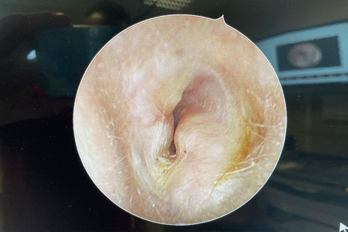 Gehörgangsexostose
