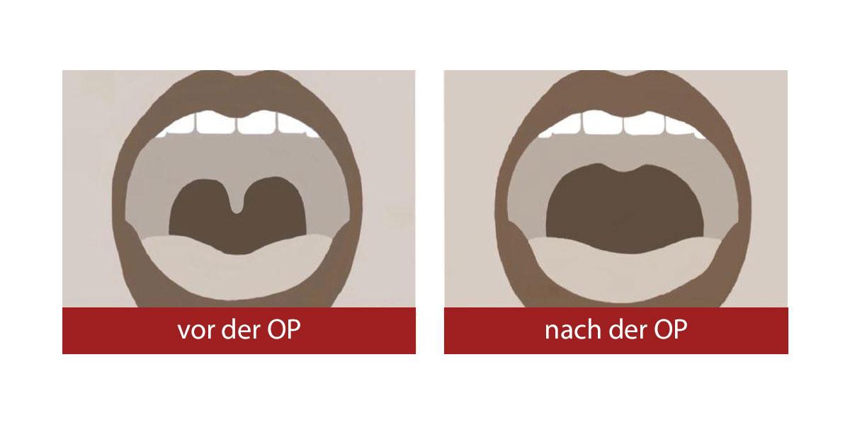 Schnarch-OP: Gaumensegelplastik (Uvulopalatopharyngoplastie, UPPP)