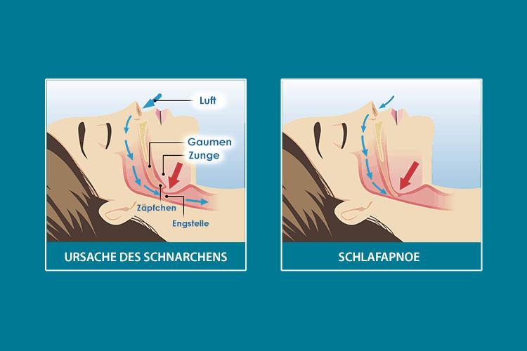Schnarchen, Schlafapnoe (Quelle: schlafwissen.com)
